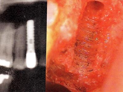 implant dr LECHNER