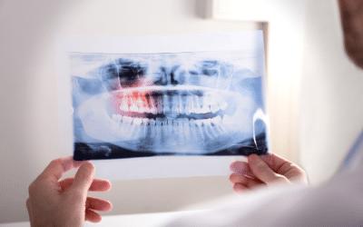 Et si ça venait des dents ?
